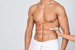Male Liposuction surgery