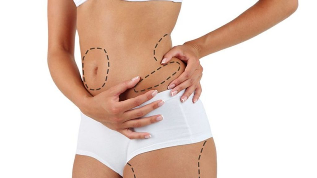 body areas can liposuction treat